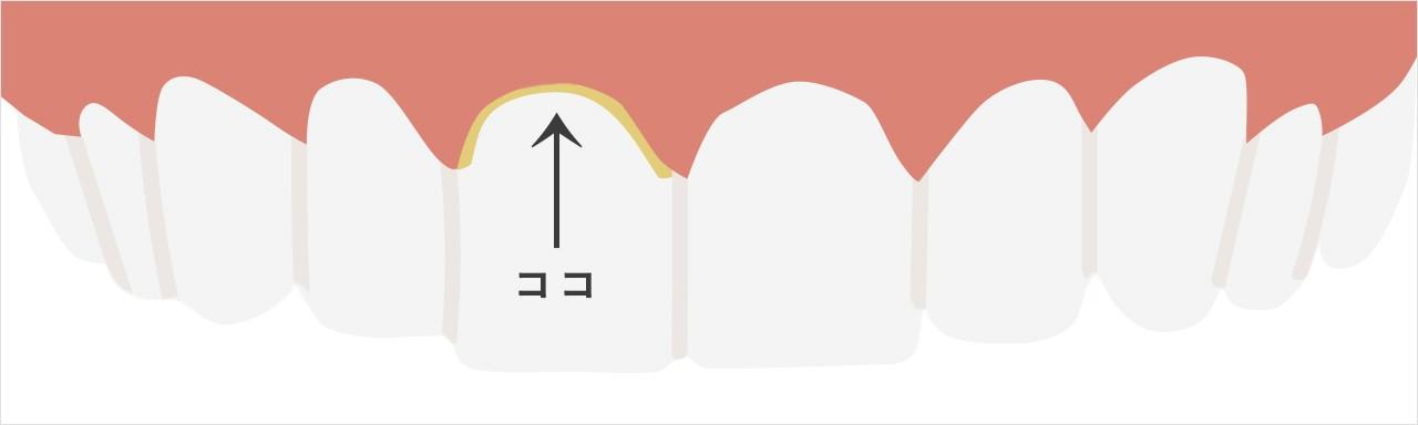 電動歯ブラシ ソニッケアー ダイヤモンド クリーン 口コミ